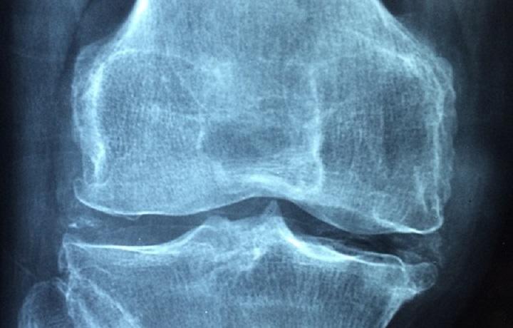 VillaMafalda, innovazione e tecnologie ortopediche