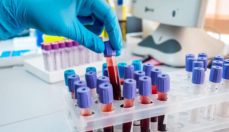 Coronavirus, c'è la prima vittima in Sicilia: è un anziano di Sortino